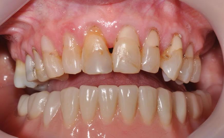 dentist geelong newtown dentist dental clinic newtown aviva before after case1 1