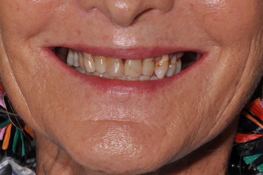dentist-geelong-newtown-dentist-dental-clinic-newtown-aviva-before-after-case1-2