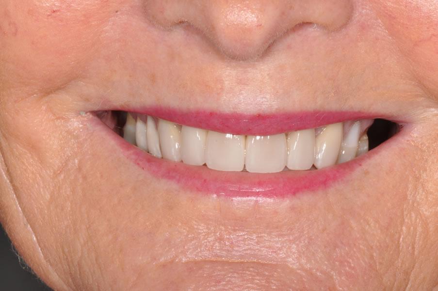 dentist-geelong-newtown-dentist-dental-clinic-newtown-aviva-before-after-case1-1-3