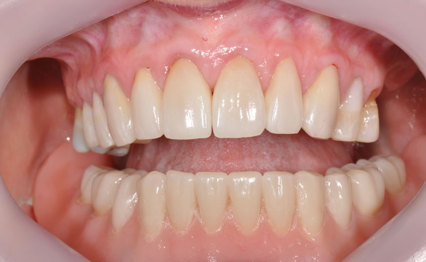 dentist geelong newtown dentist dental clinic newtown aviva before after case1 4