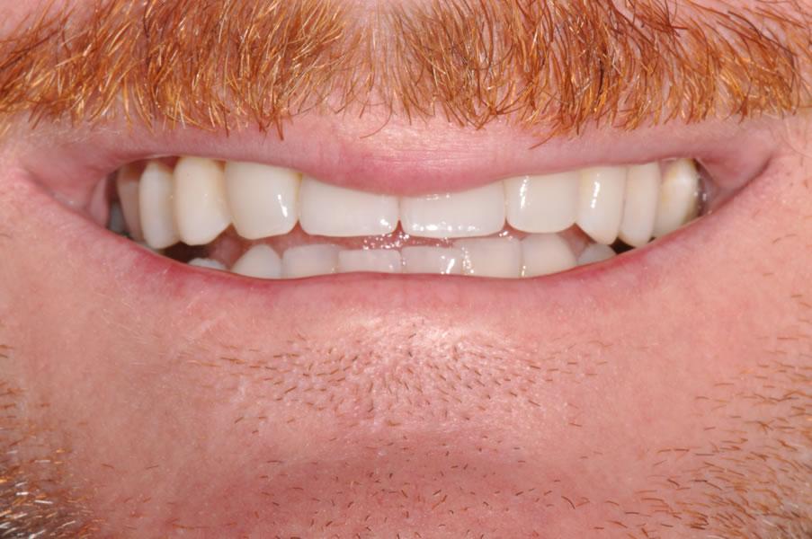 dentist-geelong-newtown-dentist-dental-clinic-newtown-aviva-implants-before-after-case2-2