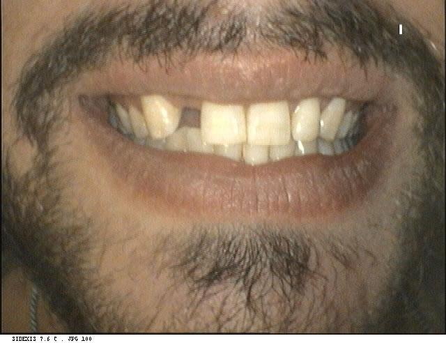 dentist-geelong-newtown-dentist-dental-clinic-newtown-bridge-aviva-before-after-case3-1