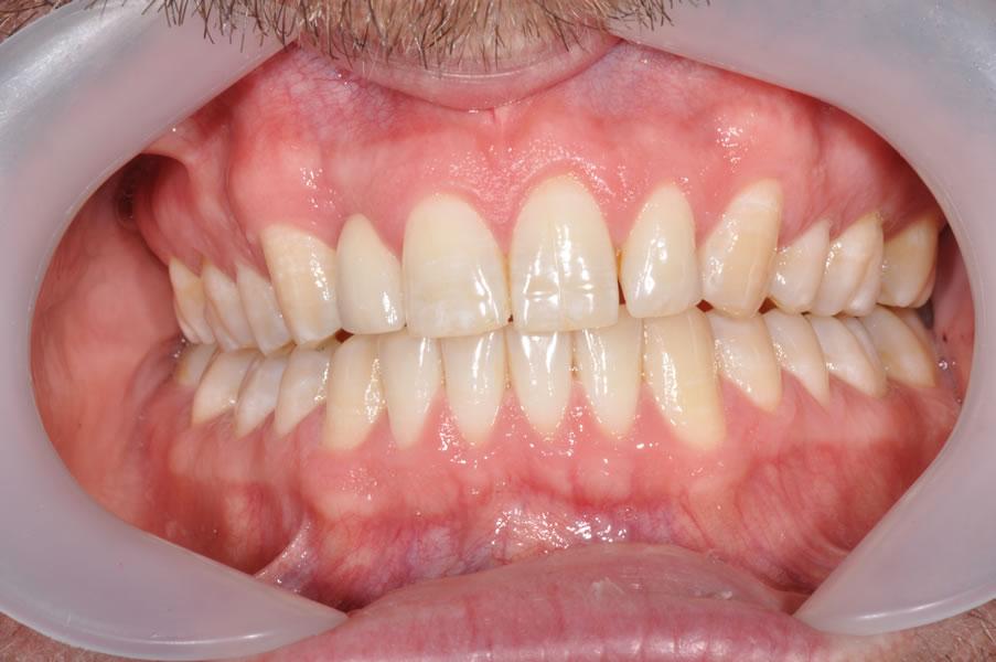 dentist-geelong-newtown-dentist-dental-clinic-newtown-bridge-aviva-before-after-case3-3