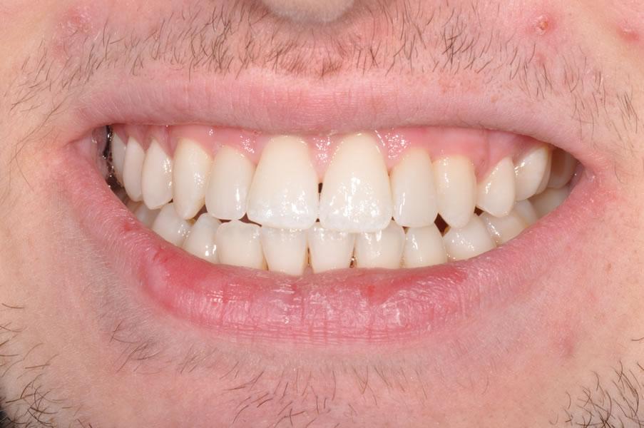 dentist-geelong-newtown-dentist-dental-clinic-newtown-veneers-aviva-before-after-case4-2